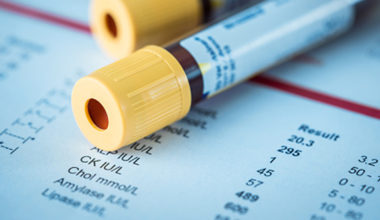 ¿Cuáles son los costos socioeconómicos de las enfermedades onco-hematológicas?
